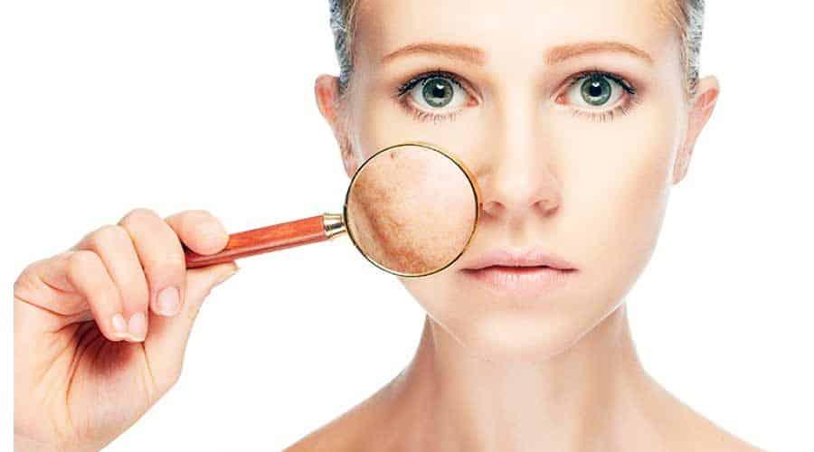 کرم حسن ترک ضد لکه های ملاسما ، و لکه های ناشی از التهاب پوستی