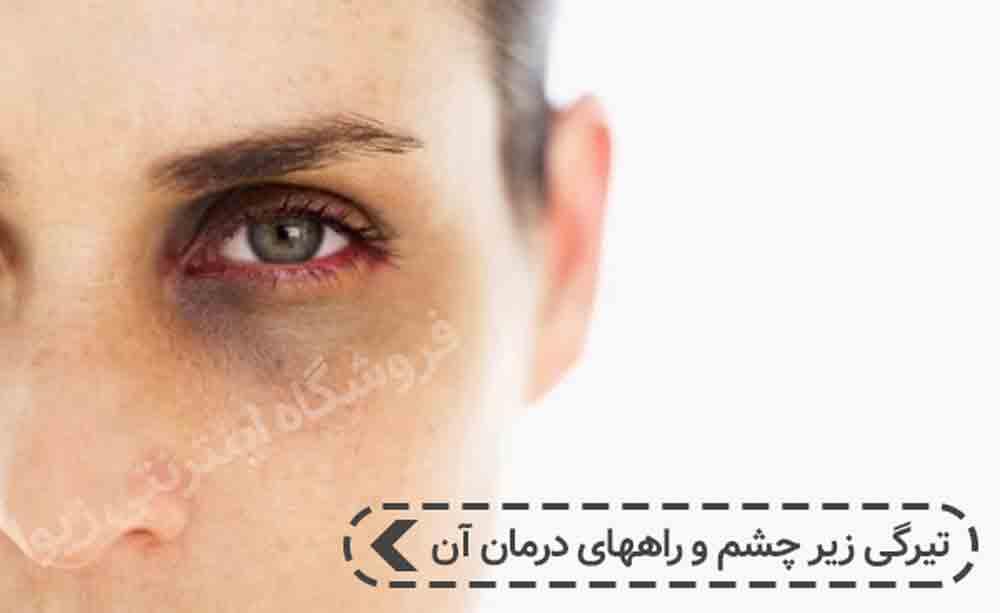تیرگی زیر چشم و راههای درمان آن